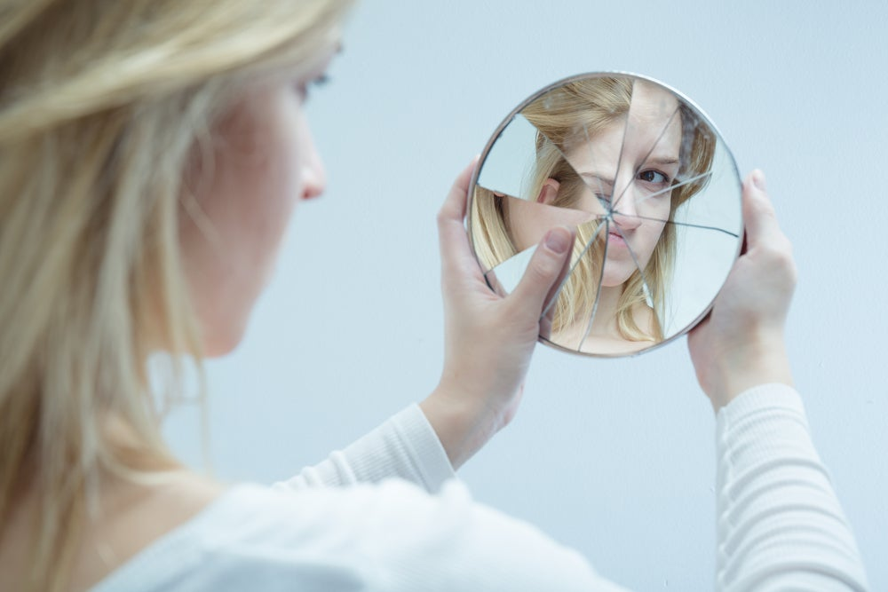 Mujer con síndrome de Rebeca