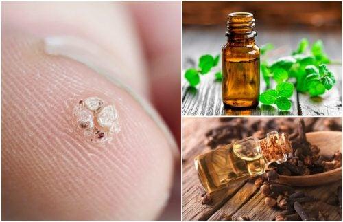 Las verrugas pueden curarse fácilmente con aceites naturales