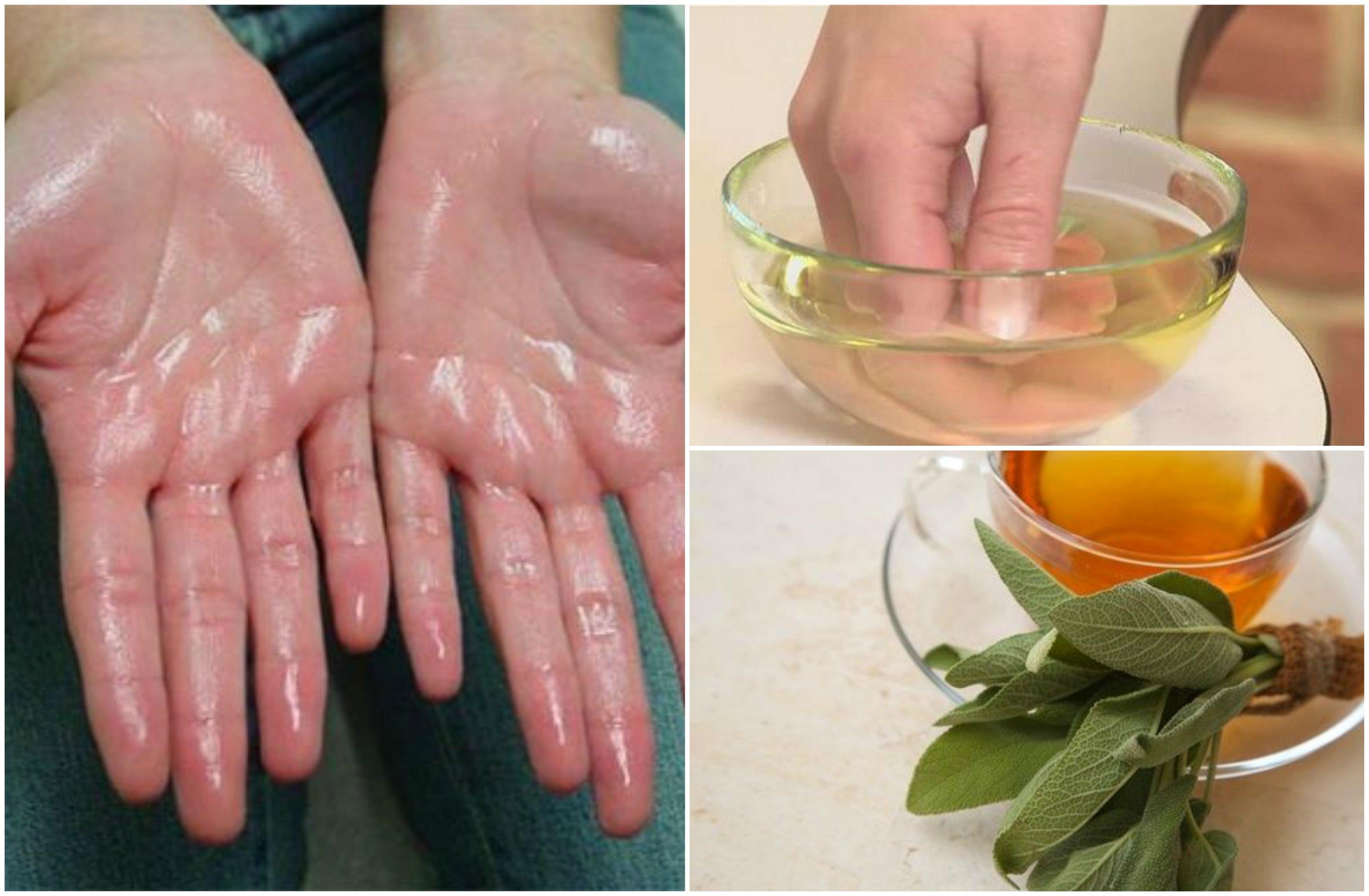 Alivia la hiperhidrosis palmar con estos 7 remedios naturales
