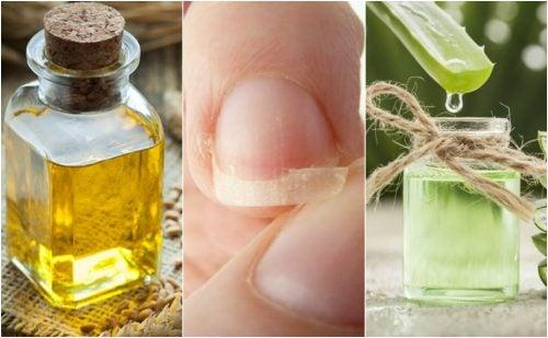 Cómo aliviar las uñas quebradizas con 5 tratamientos de origen natural
