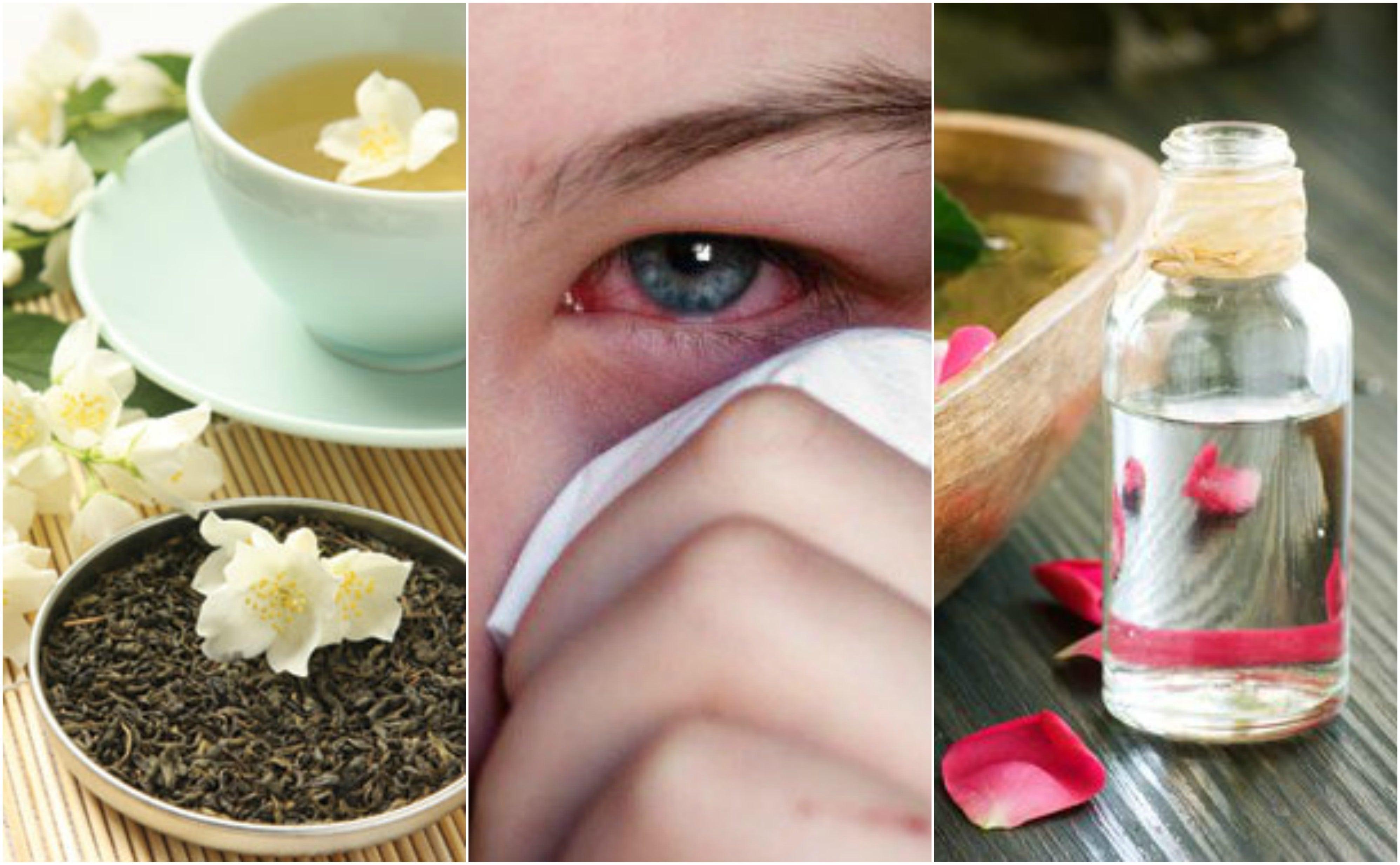 Cómo tratar las infecciones oculares con 5 remedios de origen natural