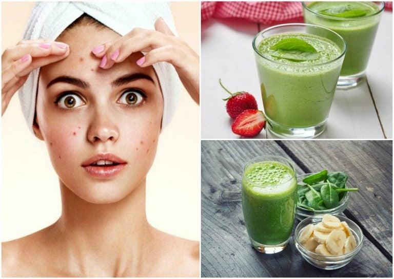 Combate el acné consumiendo estos 5 batidos verdes