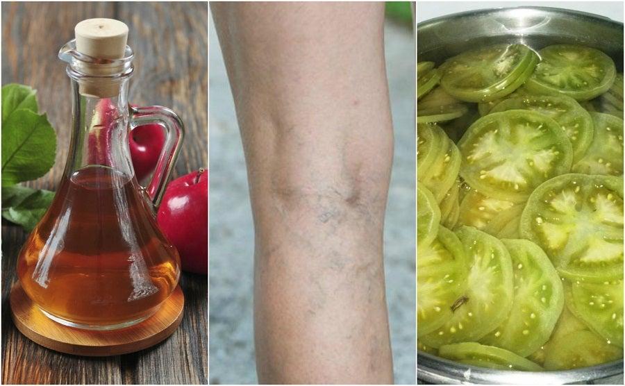 Combate las venas varices con un tratamiento casero de vinagre y tomate verde