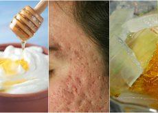 El acné dejó marcas en tu rostro Atenúalas con estas 5 mascarillas naturales