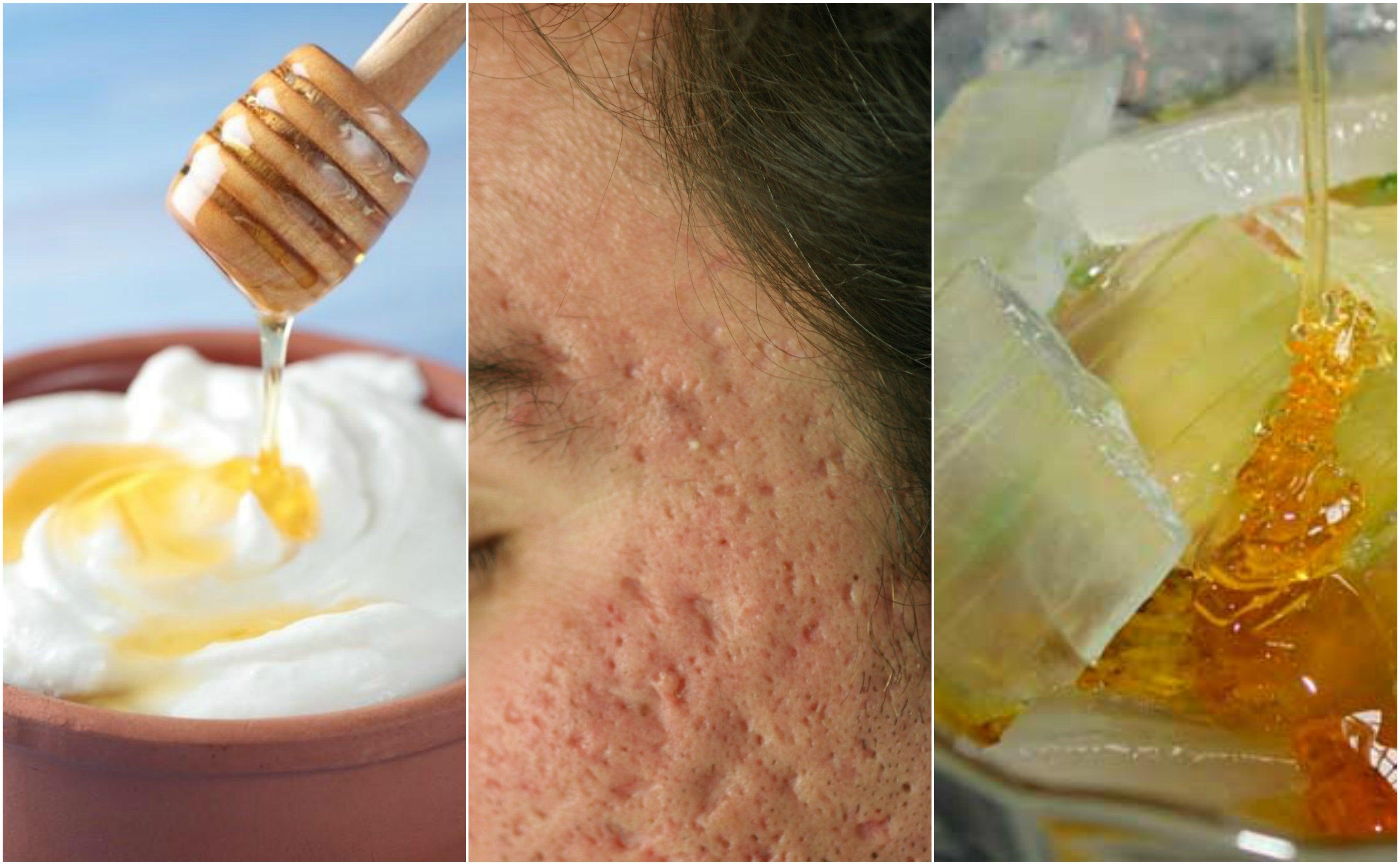 ¿El acné dejó marcas en tu rostro? Atenúalas con estas 5 mascarillas naturales