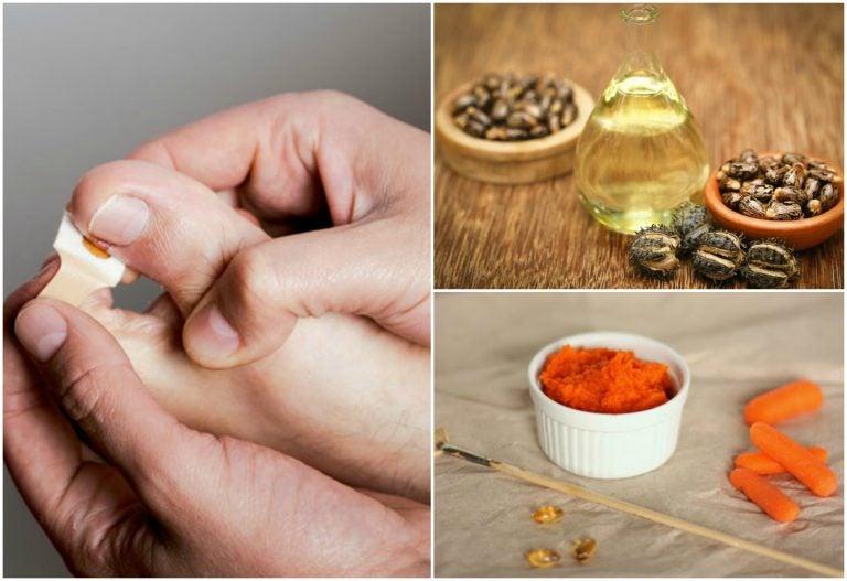 Elimina los uñeros con estos 8 tratamientos naturales