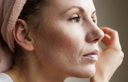 Mujer con síntomas en la piel de niveles elevados de cortisol
