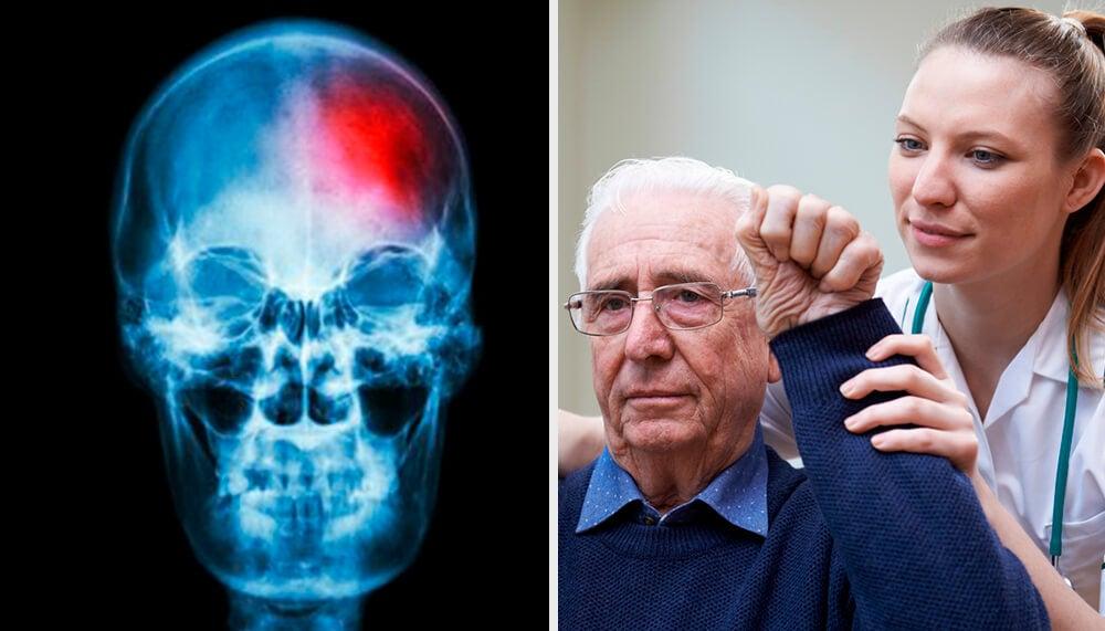 ¿Qué es un miniderrame cerebral? Claves para detectarlo