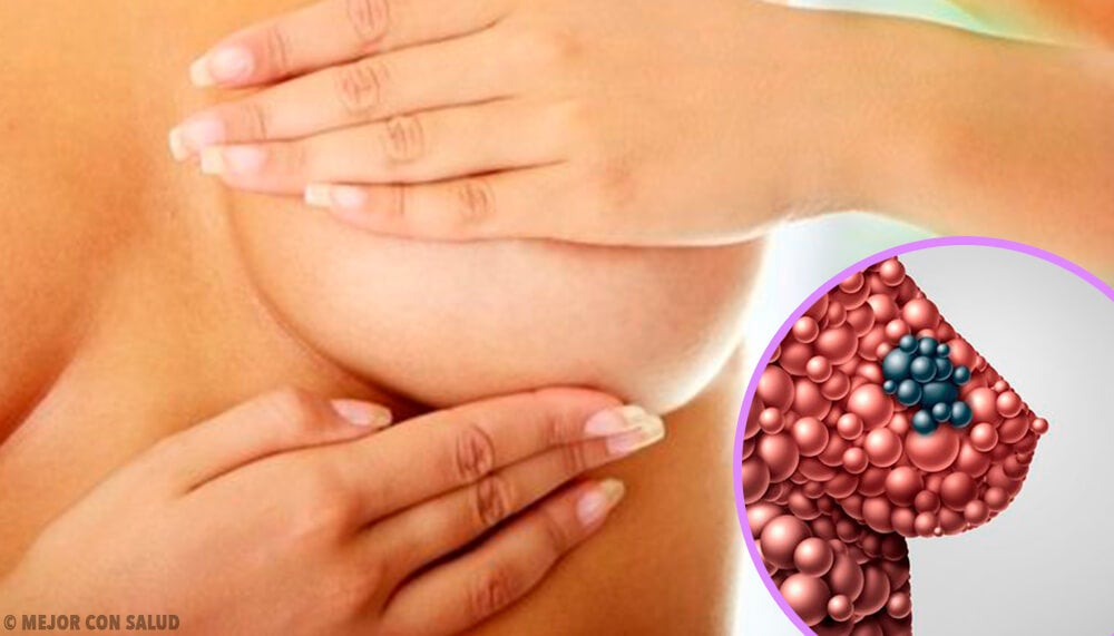 Quistes mamarios: qué son y cómo se forman