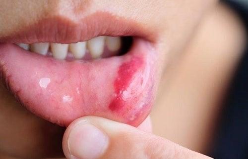 Cáncer de boca: síntomas, factores de riesgo y prevención