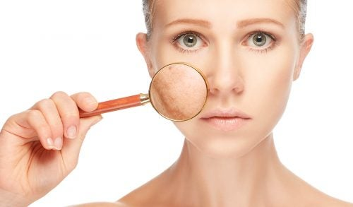 Manchas en la piel a causa del estrés