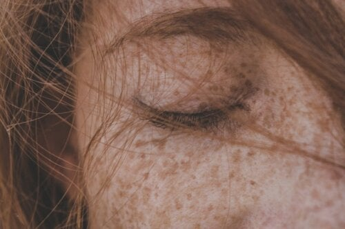 ¿Es posible eliminar las pecas de manera totalmente natural?