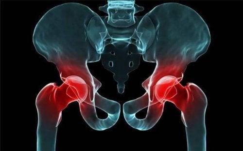 dislocación congénita de cadera