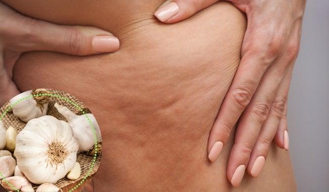 5 alternativas para combatir la celulitis