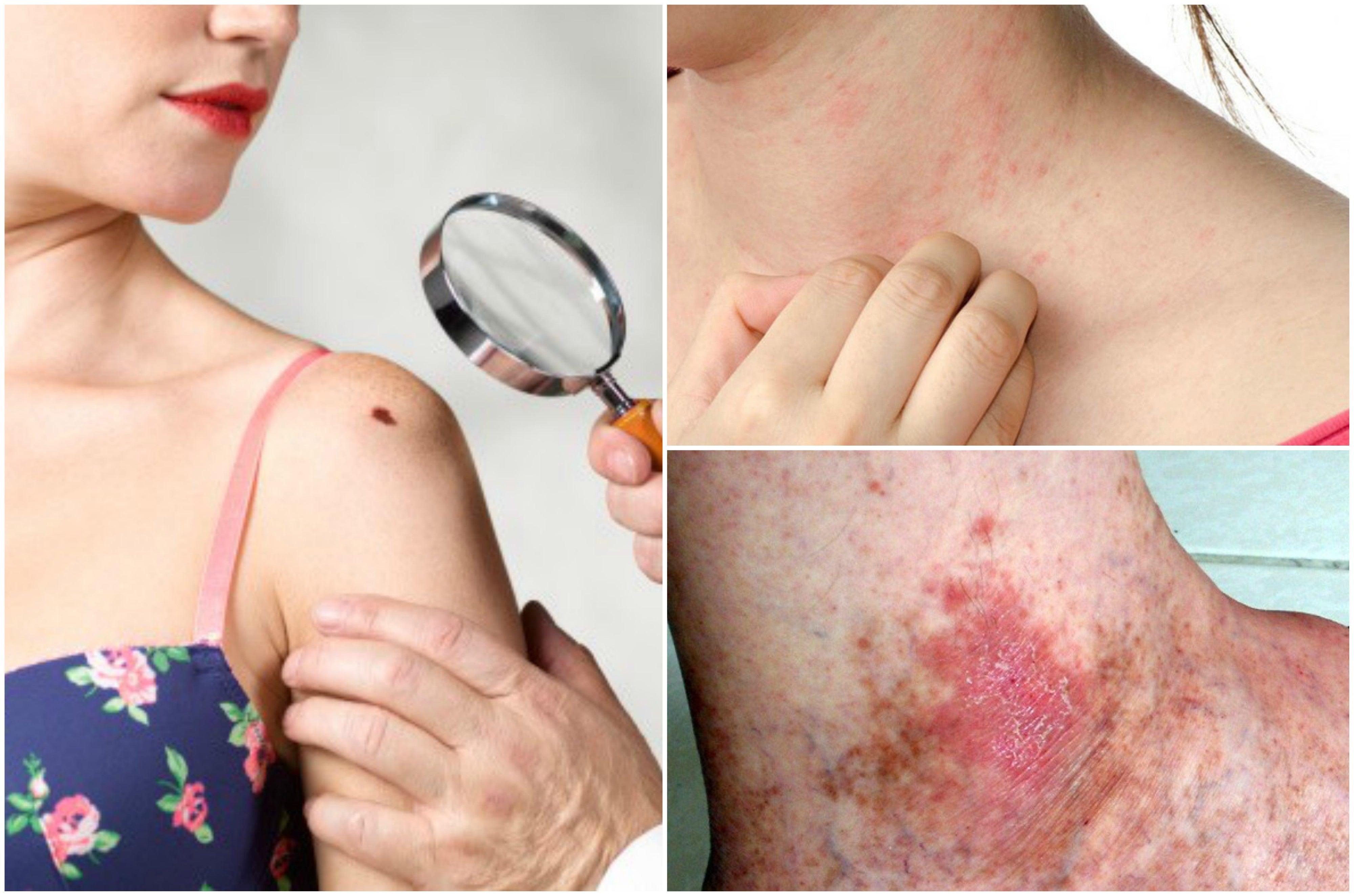 Formas del cáncer de piel.