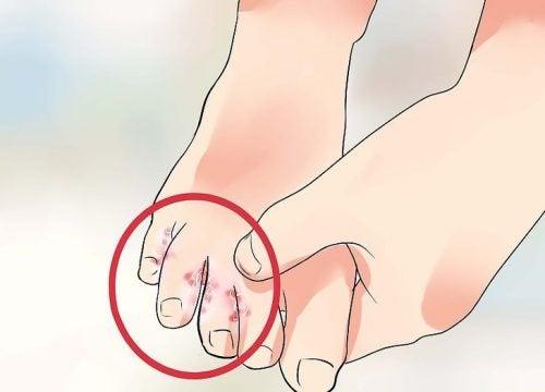 como eliminar los hongos de los pies de forma natural
