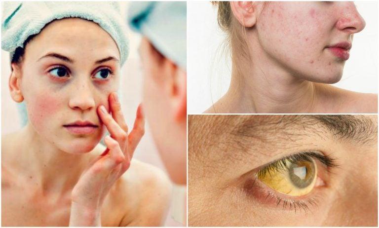 7 señales de deficiencias nutricionales en tu rostro