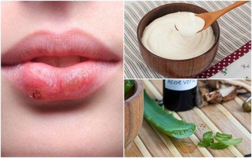 Para combatir el herpes bucal no hacen falta fármacos artificiales