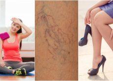 8 cosas que puedes hacer para prevenir las arañitas vasculares