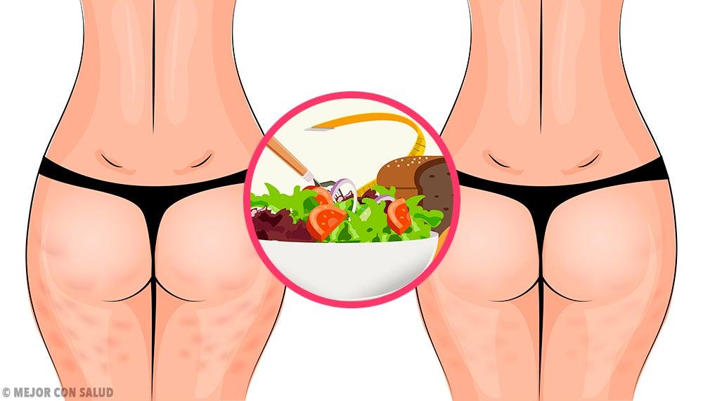 ¿Dónde puedes obtener aftas en tu cuerpo?