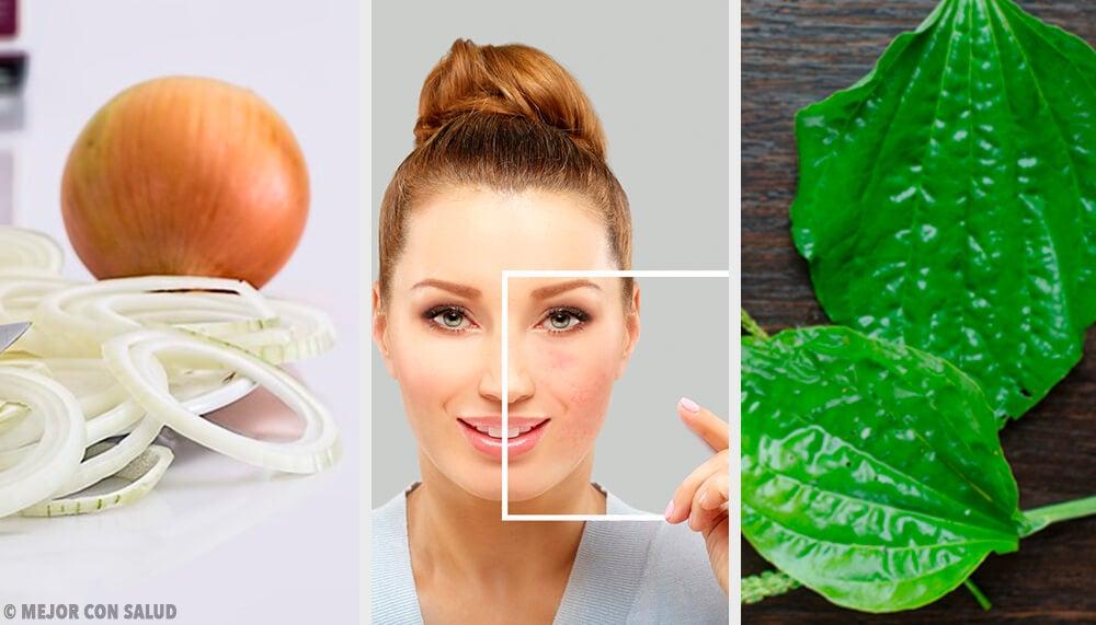 Cómo eliminar manchas en la cara con ingredientes naturales