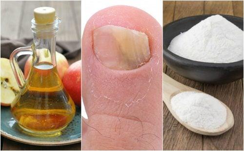 Combate los hongos en las uñas con vinagre de manzana y bicarbonato de sodio
