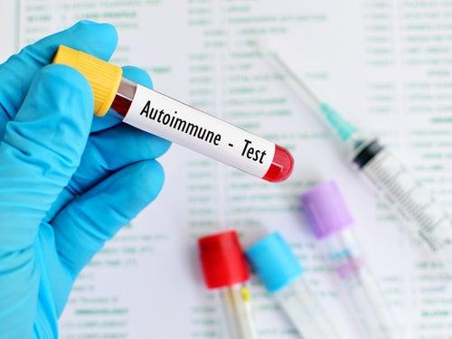 Test enfermedad auto inmune