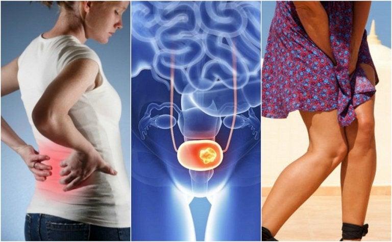 Investigaciones sobre el cáncer de vejiga
