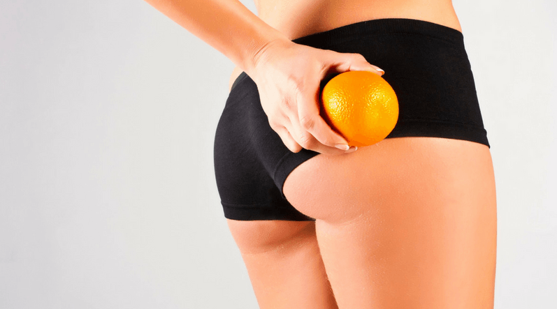 7 remedios naturales para reducir el impacto de la celulitis: ¡Funcionan!
