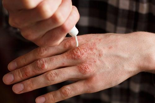 Mano con artritis psoriásica aplicándose crema