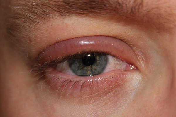mitos sobre la vista