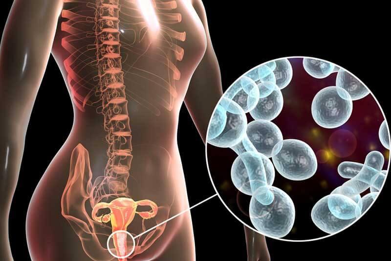 infección por levaduras y herpes genital