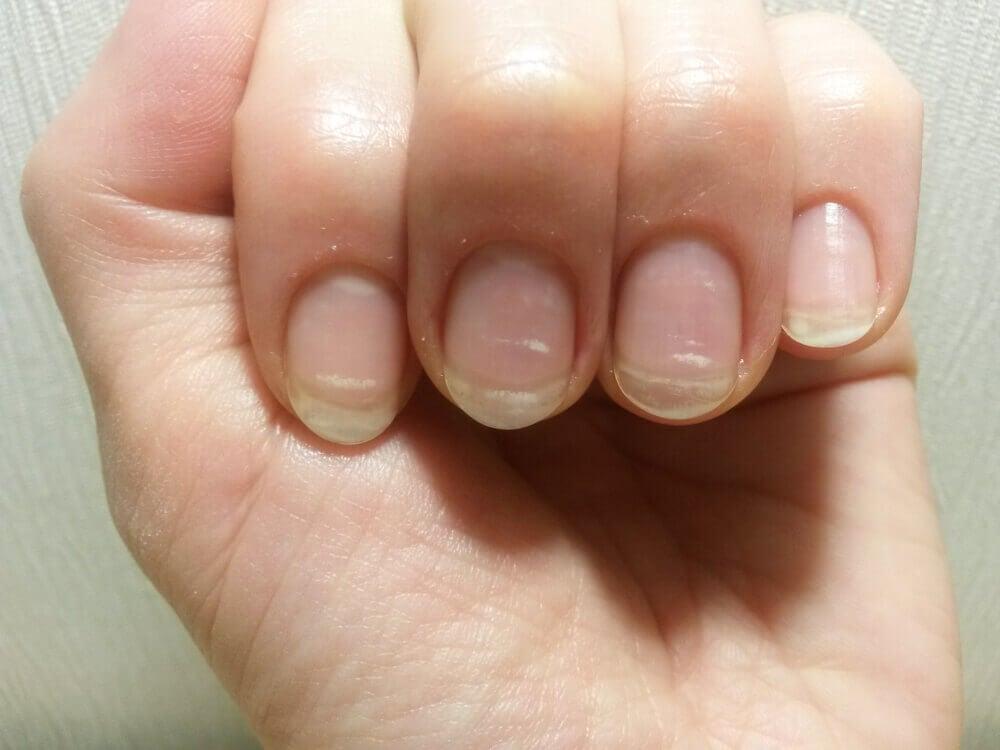 Manos con manchas en las uñas.