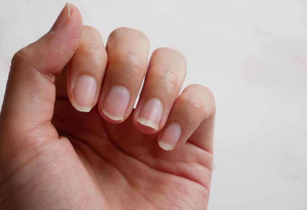 Manos con uñas quebradizas.
