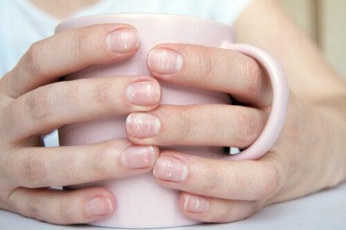 Problemas de salud de los que te advierten las lúnulas de tus uñas