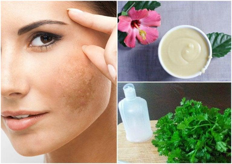 Reduce el paño de tu rostro con 5 tratamientos naturales