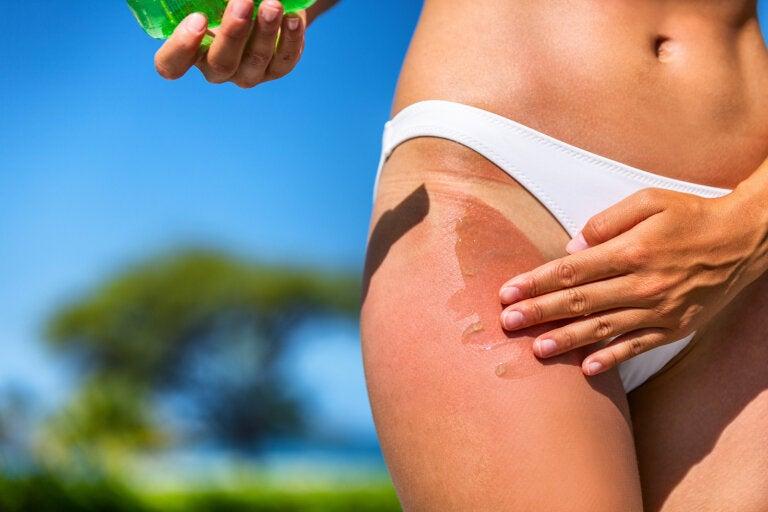 7 remedios caseros para evitar y aliviar las quemaduras de sol