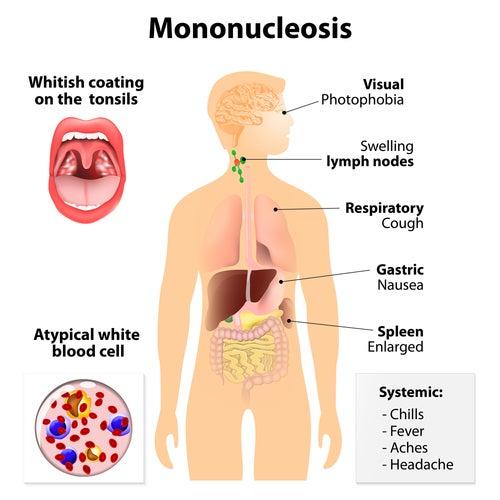 Síntomas mononucleosis