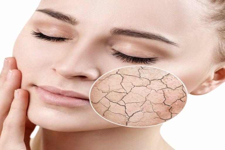 3 alternativas para evitar la resequedad en la piel
