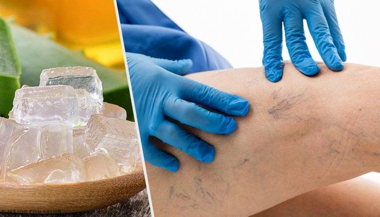 5 alternativas para tratar las varices