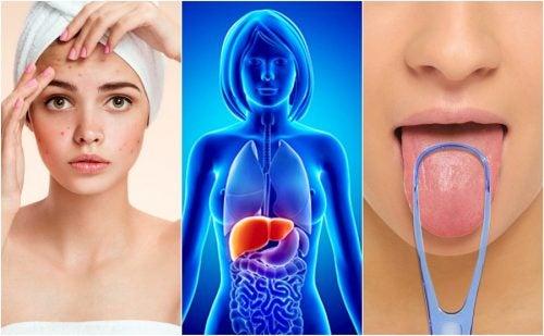 Señales de advertencia de que tu hígado está lleno de toxinas