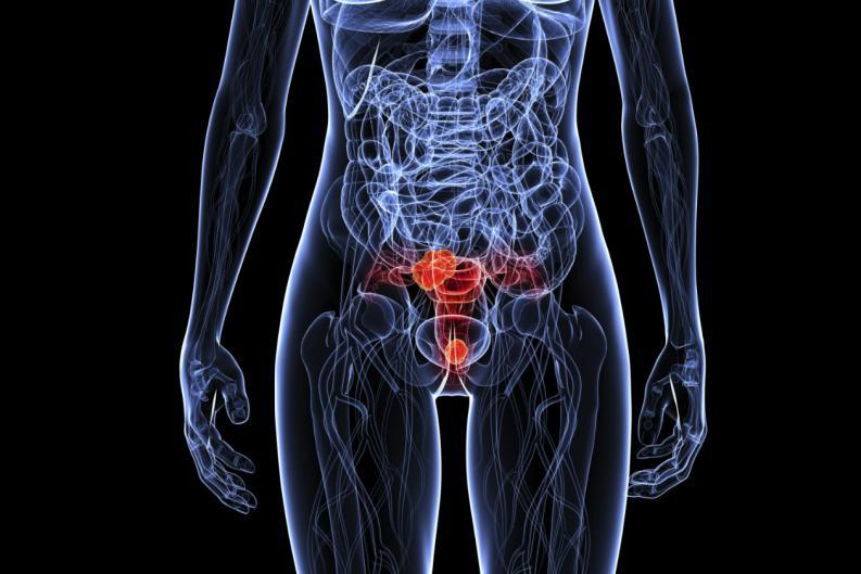 Cuadros clínicos del virus del papiloma humano