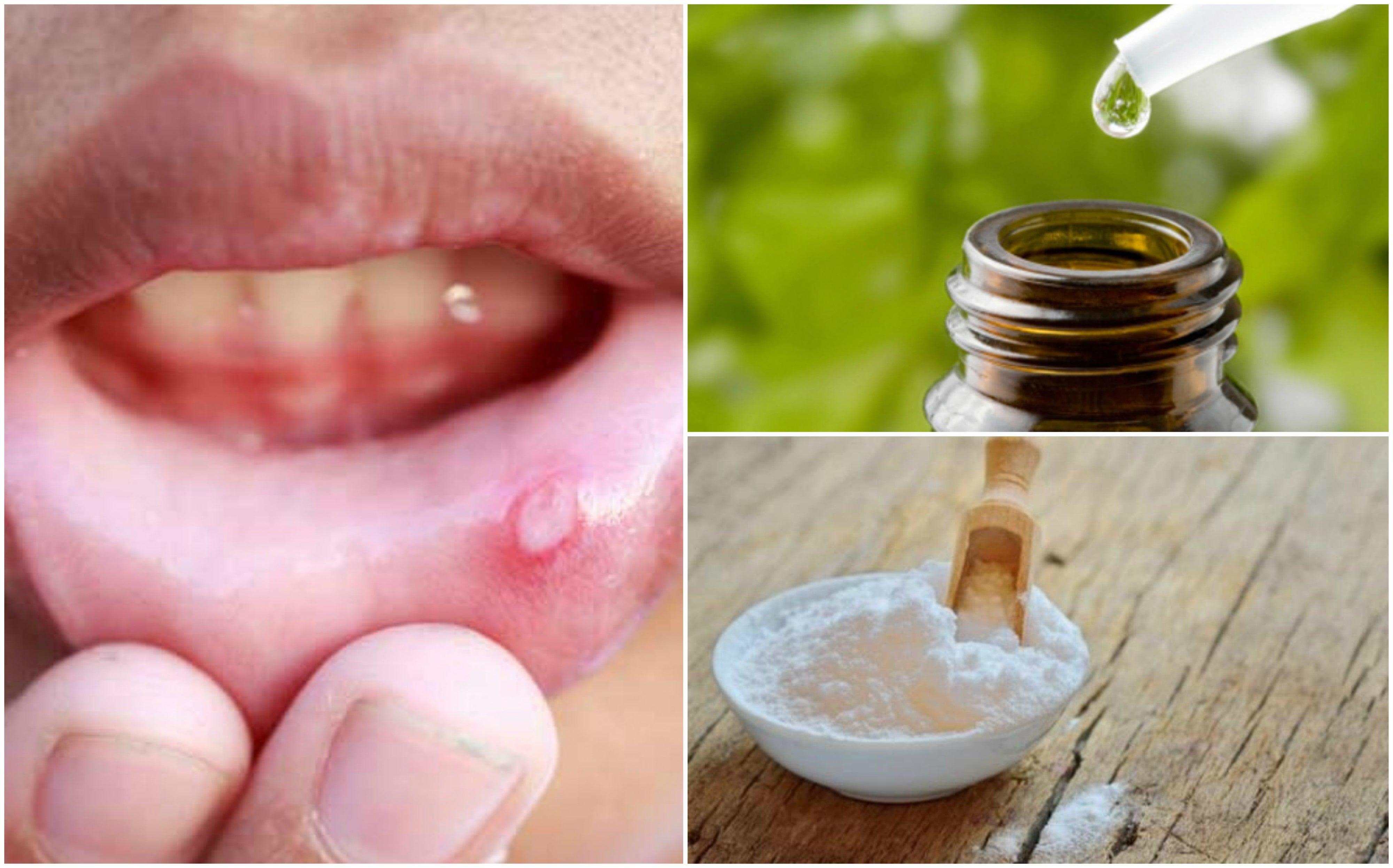 Alivia las aftas bucales usando estos 6 remedios de origen natural