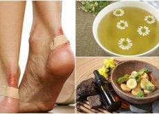 Alivia las rozaduras en los pies con estas 5 soluciones naturales