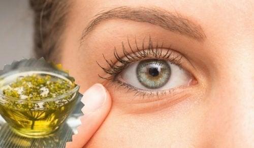 Cómo disminuir la hinchazón en los ojos con estos 5 trucos caseros
