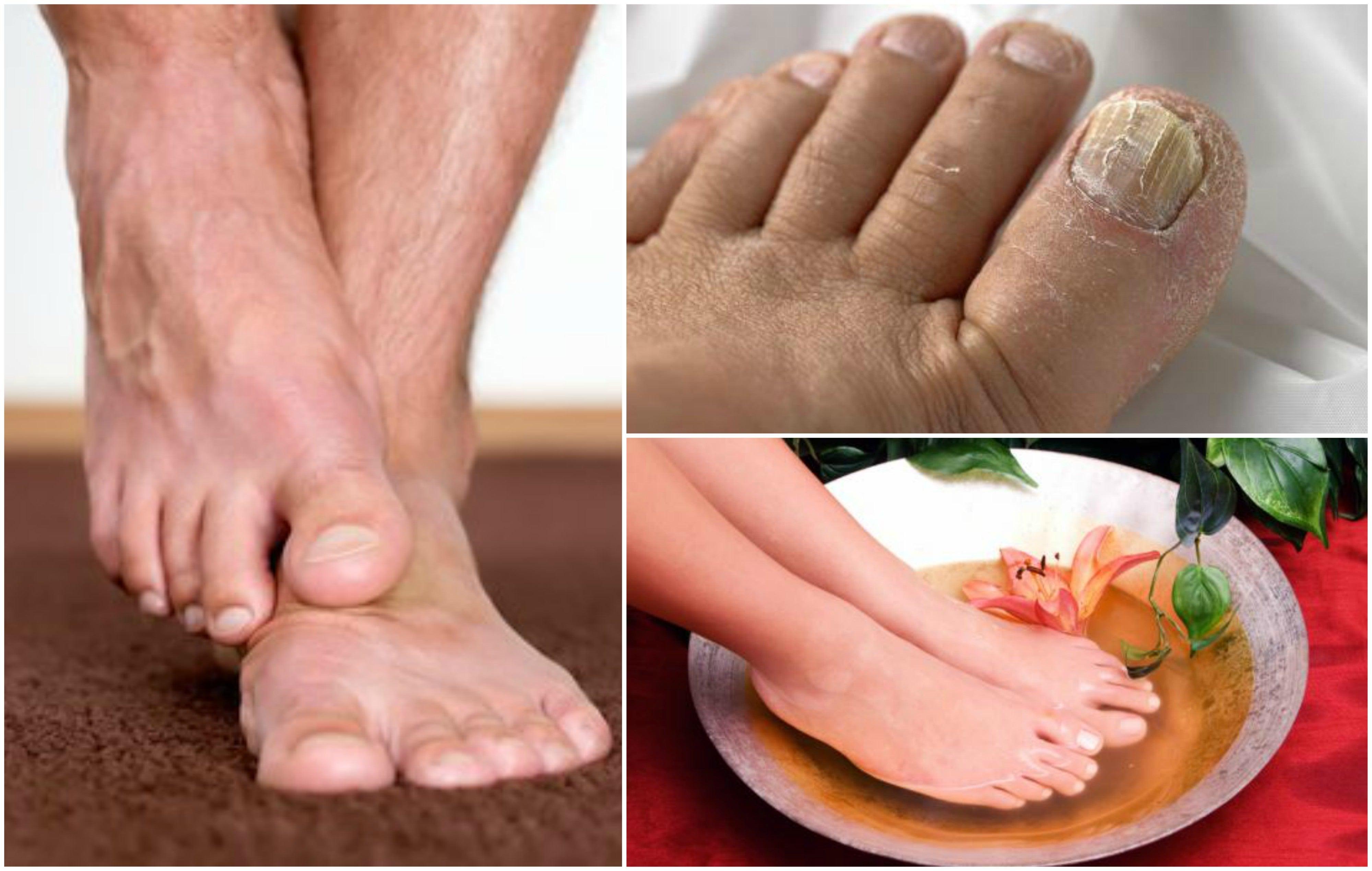 Cómo identificar si tienes hongos en los pies