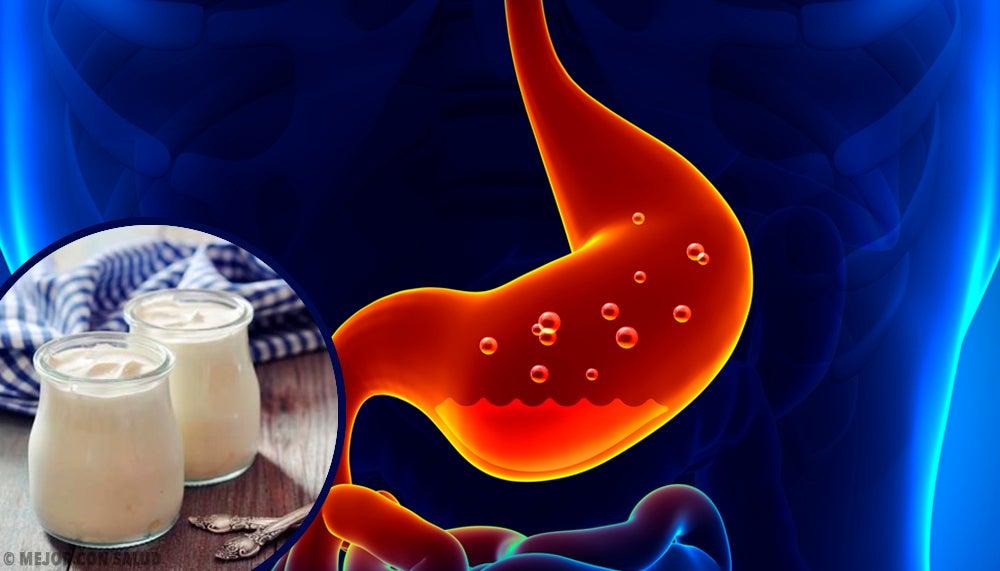 ¿Cómo tratar la gastritis de forma rápida y casera?