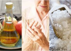 Calma los síntomas de la artritis en las manos con estos 6 remedios naturales