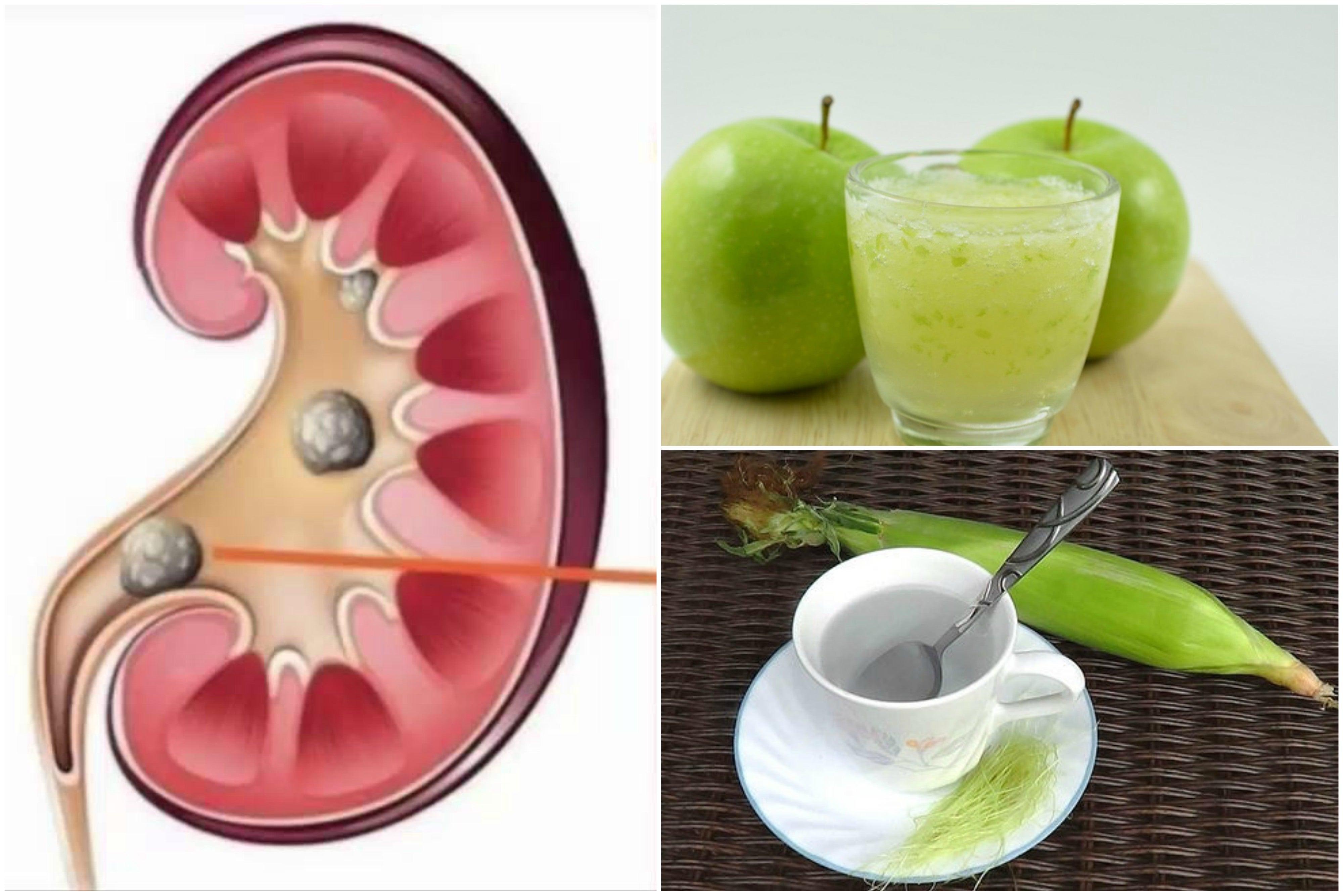 Disuelve las piedras en los riñones preparando 5 remedios de origen natural