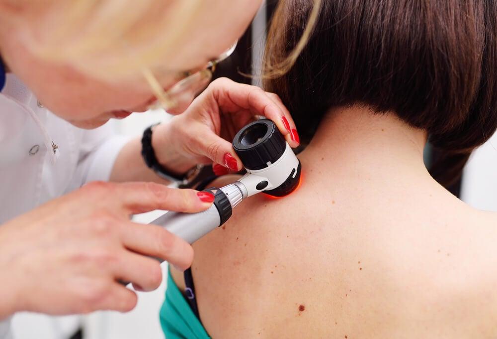 Es el melanoma el único tipo de cáncer grave de piel